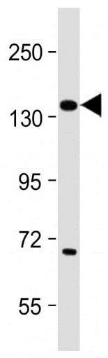 Western blot - Anti-Insulin Receptor alpha antibody (ab5500)