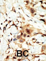 Immunohistochemistry (Formalin/PFA-fixed paraffin-embedded sections) - Anti-Insulin Receptor alpha antibody (ab5500)