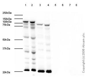 Western blot - Anti-CLLD8/SETDB2 antibody (ab5517)