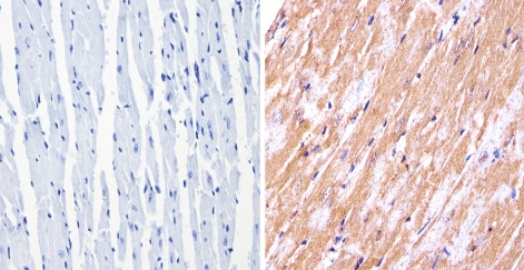 Immunohistochemistry (Formalin/PFA-fixed paraffin-embedded sections) - Anti-nNOS (neuronal) antibody (ab5586)