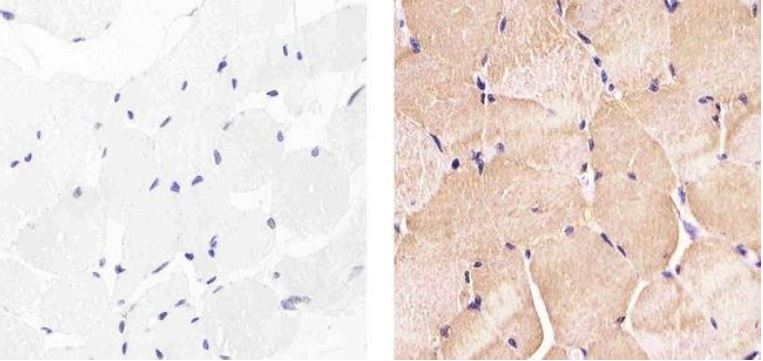 Immunohistochemistry (Formalin/PFA-fixed paraffin-embedded sections) - Anti-Hsp27 (phospho S85) antibody (ab5594)
