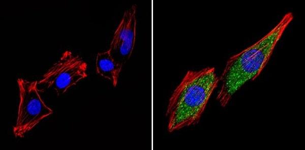 Immunocytochemistry/ Immunofluorescence - Anti-Thyroid Hormone Receptor beta antibody - ChIP Grade (ab5622)