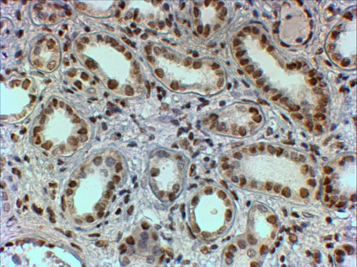 Immunohistochemistry (Formalin/PFA-fixed paraffin-embedded sections) - Anti-PTBP1  antibody (ab5642)