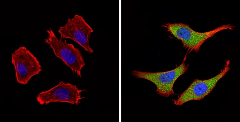 Immunocytochemistry/ Immunofluorescence - Anti-BACE2  antibody (ab5670)