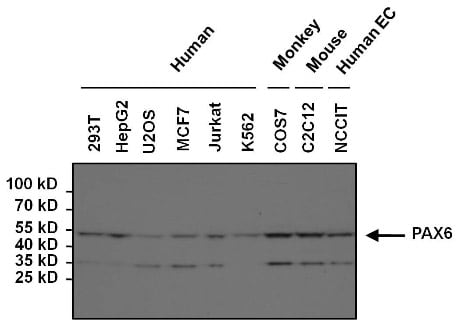 Western blot - Anti-PAX6 antibody (ab5790)