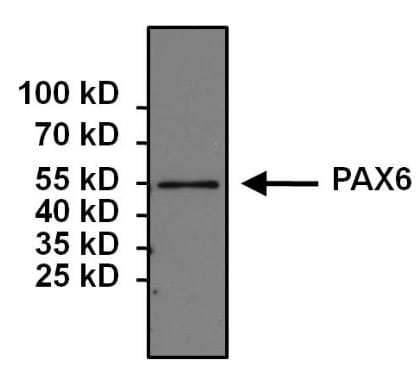 Immunoprecipitation - Anti-PAX6 antibody (ab5790)