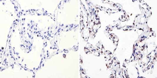 Immunohistochemistry (Formalin/PFA-fixed paraffin-embedded sections) - Anti-NCOR2 / SMRT antibody - Chimeric (ab5802)
