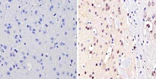 Immunohistochemistry (Formalin/PFA-fixed paraffin-embedded sections) - Anti-NCOR2/SMRT antibody - ChIP Grade (ab5802)