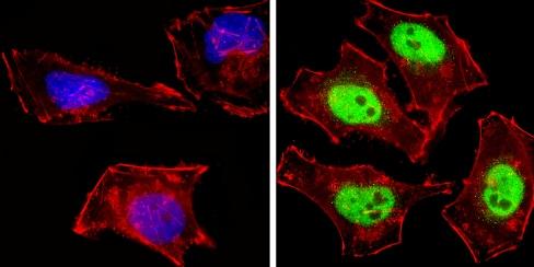 Immunocytochemistry/ Immunofluorescence - Anti-NCOR2/SMRT antibody - ChIP Grade (ab5802)
