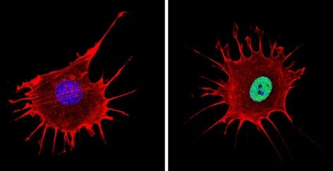 Immunocytochemistry/ Immunofluorescence - Anti-NCOR2 antibody - ChIP Grade (ab5802)