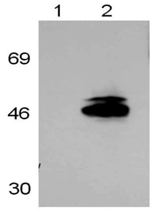 Western blot - Anti-Retinoic Acid Receptor gamma 1 antibody (ab5904)