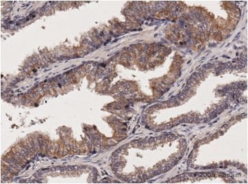 Immunohistochemistry (Formalin/PFA-fixed paraffin-embedded sections) - Anti-GIPC1 antibody (ab5951)