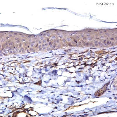 Immunohistochemistry (Formalin/PFA-fixed paraffin-embedded sections) - Anti-IL-21 antibody (ab5978)