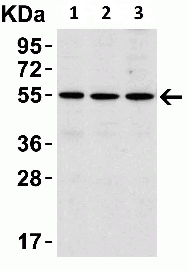 Western blot - Anti-IRAK4 antibody (ab5985)