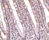 Immunohistochemistry (Formalin/PFA-fixed paraffin-embedded sections) - Anti-PHAP antibody (ab5987)