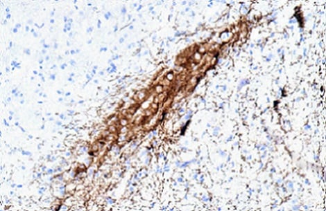 Immunohistochemistry (Formalin/PFA-fixed paraffin-embedded sections) - Anti-Dopamine Transporter antibody [hDAT-NT] (ab5990)