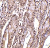 Immunohistochemistry (Formalin/PFA-fixed paraffin-embedded sections) - Anti-ANP32E antibody (ab5993)