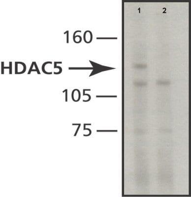 Western blot - Anti-HDAC5 antibody [HDAC5-35] (ab50001)
