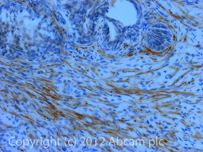 Immunohistochemistry (Formalin/PFA-fixed paraffin-embedded sections) - Anti-TMEFF2 antibody (ab50002)