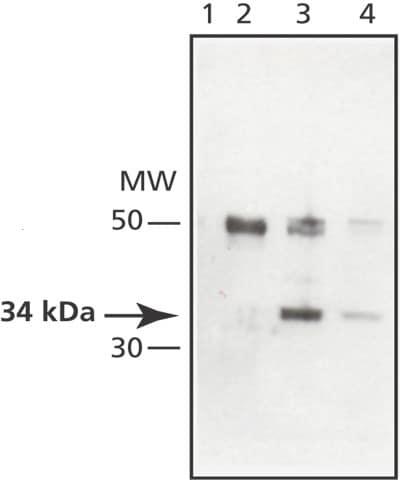 Western blot - Anti-MAPRE1 antibody (ab50188)