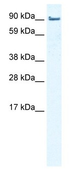 Western blot - Anti-EPLIN antibody (ab50196)