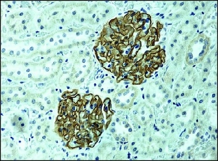 Immunohistochemistry (Formalin/PFA-fixed paraffin-embedded sections) - Anti-NPHS2 antibody (ab50339)