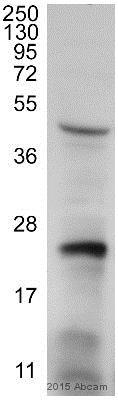 Western blot - Anti-RAB7 antibody [Rab7-117] (ab50533)