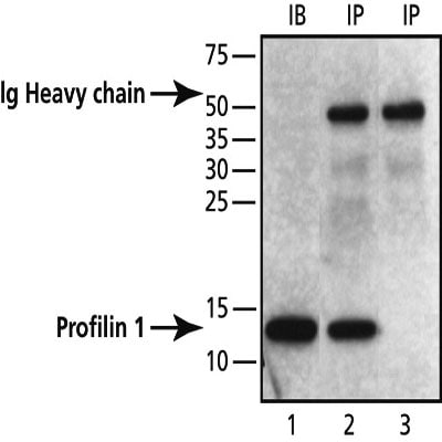 Immunoprecipitation - Anti-Profilin 1 antibody - Carboxyterminal end (ab50667)