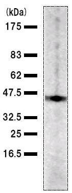 Western blot - Anti-TFIISH antibody [TCE5I551] (ab50797)