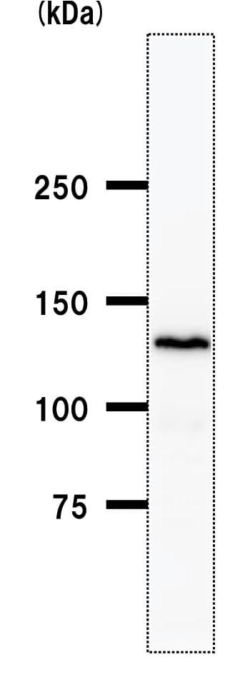 Western blot - Anti-BBX antibody [2065C12a] (ab50824)