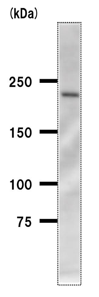Western blot - Anti-Acinus antibody [2005C3a] (ab50827)