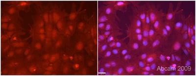 Immunocytochemistry/ Immunofluorescence - Anti-Rex1 antibody (ab50828)