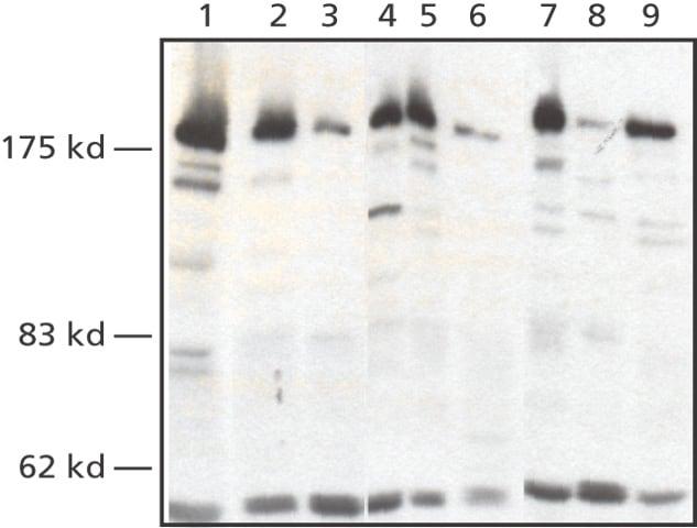 Western blot - Anti-WSTF antibody (ab50850)