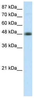 Western blot - Anti-AP2 beta antibody (ab50906)