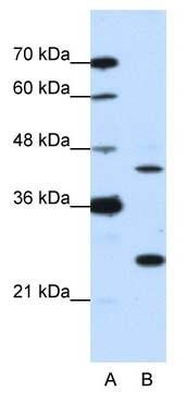 Western blot - Anti-MINA53 antibody (ab50908)