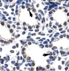 Immunohistochemistry (Formalin/PFA-fixed paraffin-embedded sections) - Anti-POP4 antibody (ab50948)