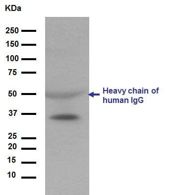 Western blot - Anti-Apolipoprotein E antibody [EP1373Y] (ab51015)