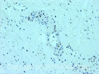 Immunohistochemistry (Formalin/PFA-fixed paraffin-embedded sections) - Anti-DDB2 antibody [2246C4a] (ab51017)
