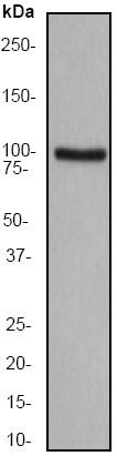 Western blot - Anti-CTNNA1 antibody [EP1793Y] (ab51032)