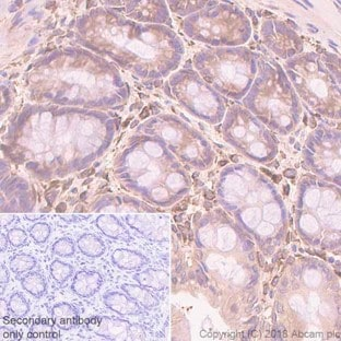 Immunohistochemistry (Formalin/PFA-fixed paraffin-embedded sections) - Anti-pan Cadherin antibody [EPR1792Y] - Intercellular Junction Marker (ab51034)
