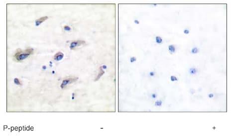 Immunohistochemistry (Formalin/PFA-fixed paraffin-embedded sections) - Anti-Tau (phospho S356) antibody (ab51036)