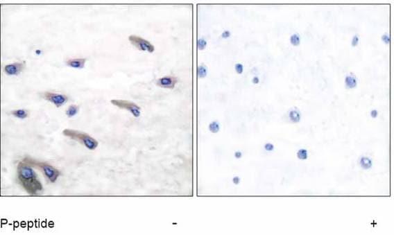 Immunohistochemistry (Formalin/PFA-fixed paraffin-embedded sections) - Anti-PDGF Receptor beta (phospho Y751) antibody (ab51046)