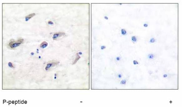Immunohistochemistry (Formalin/PFA-fixed paraffin-embedded sections) - Anti-Tau (phospho T212) antibody (ab51053)