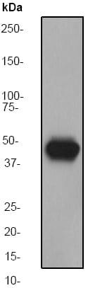 Western blot - Anti-Cytokeratin 14 antibody [EP1612Y] (ab51054)