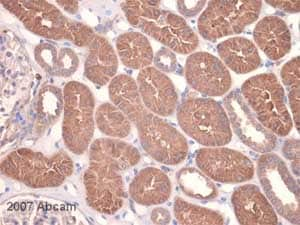 Immunohistochemistry (Formalin/PFA-fixed paraffin-embedded sections) - Anti-MMP14 antibody [EP1264Y] (ab51074)