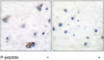 Immunohistochemistry (Formalin/PFA-fixed paraffin-embedded sections) - Anti-GABA A Receptor beta 1 (phospho S434) antibody (ab51123)