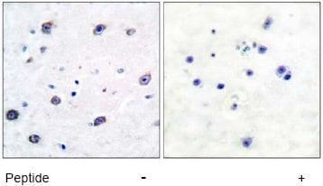 Immunohistochemistry (Formalin/PFA-fixed paraffin-embedded sections) - Anti-alpha Adducin antibody (ab51130)