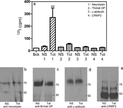 Immunoprecipitation - Anti-alpha Adducin antibody (ab51130)