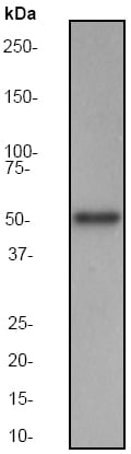 Western blot - Anti-MST3 antibody [EP1468Y] (ab51137)