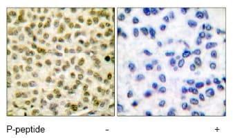 Immunohistochemistry (Formalin/PFA-fixed paraffin-embedded sections) - Anti-c-Myc (phospho S62) antibody (ab51156)